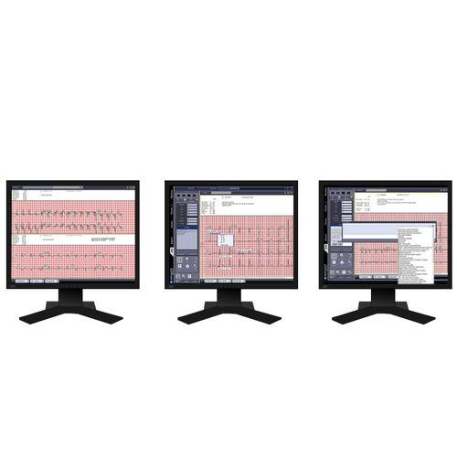 système de gestion d'analyse / de visualisation / ECG