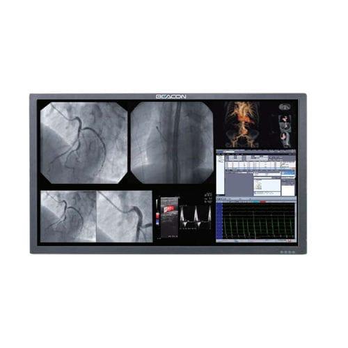 écran chirurgical - Shenzhen Beacon Display Technology Co., Ltd.