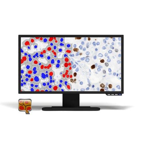 module logiciel d'imagerie cellulaire / d'analyse / de visualisation / de reporting