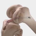 prothèse ligamentaire ligament croisé antérieur