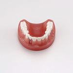 modèle anatomique de dentition