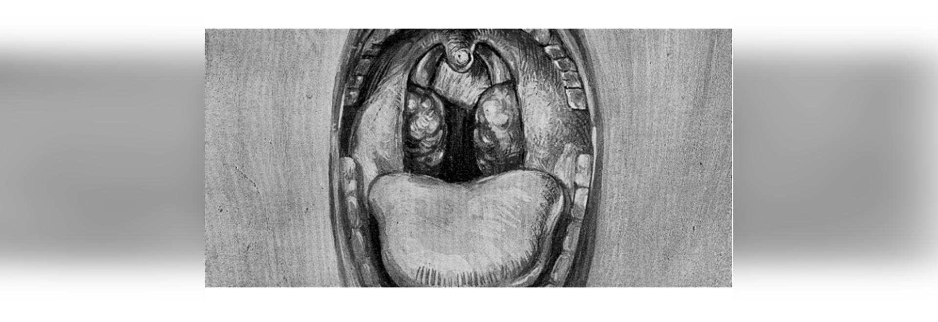 L'adénotonsillectomie pour l'apnée obstructive du sommeil chez les jeunes enfants n'a aucun effet sur la cognition