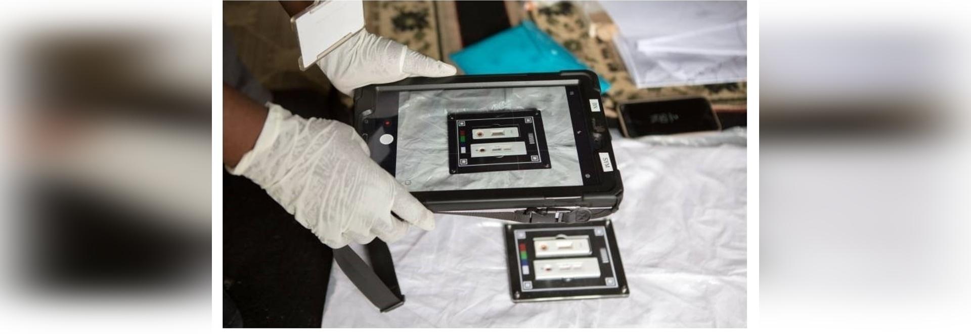 Une application alimentée par l'IA interprète les résultats des tests de dépistage du VIH