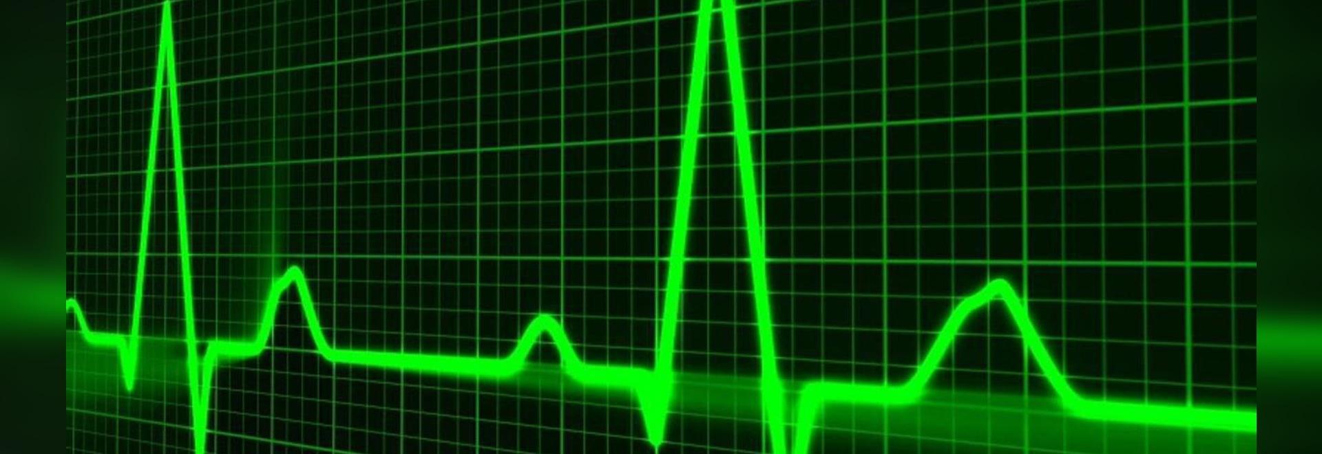 AtriCure complète le recrutement des patients pour l'essai aMAZE