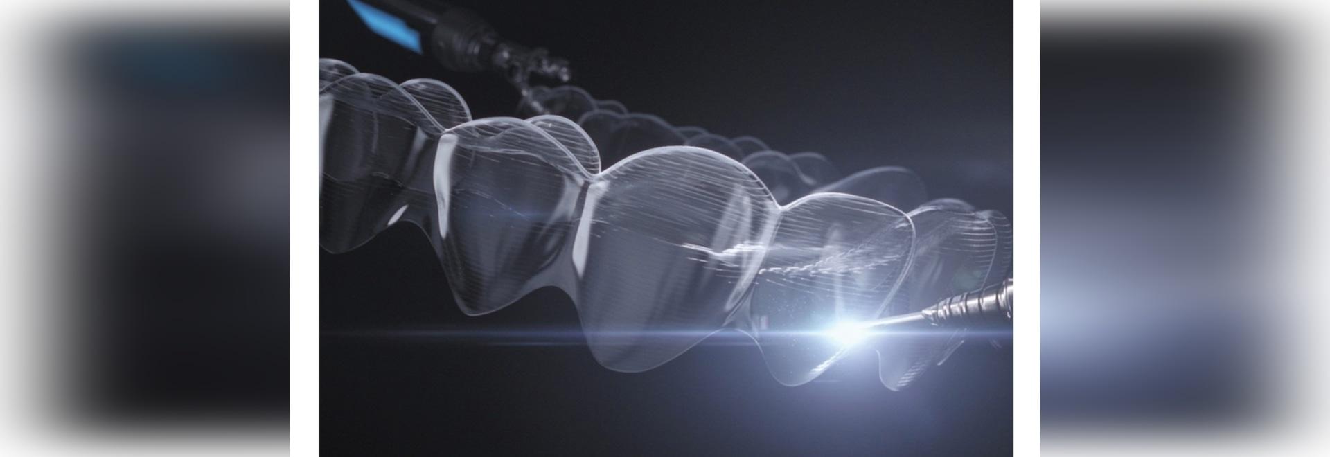 Un matériau d'alignement rend le traitement orthodontique plus prévisible
