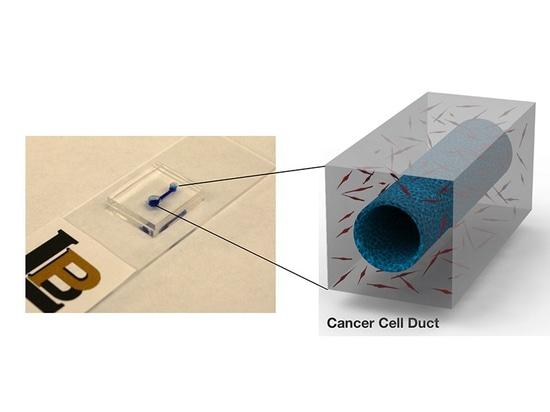 Dispositif de Microfluidic pour étudier comment le Cancer pancréatique développe des caillots