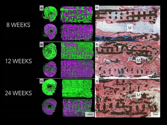 les implants 3D-Printed en céramique aident à regrow l'os