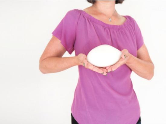 Prothèses mammaires imprimées en 3D
