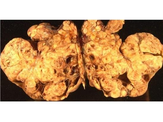 Le niraparib augmente la survie sans progression chez les patientes atteintes d'un cancer des ovaires