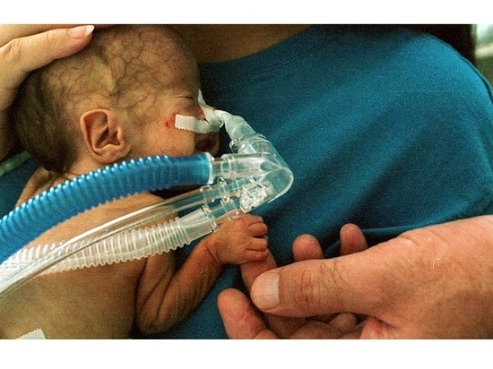 L'érythropoïétine à forte dose peut ne pas être efficace pour la neuroprotection chez les nourrissons extrêmement prématurés