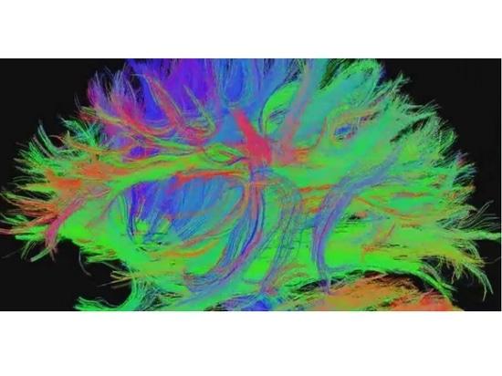 Association de l'architecture intrinsèque du cerveau avec les changements des symptômes de l'attention et de l'humeur au cours du développement