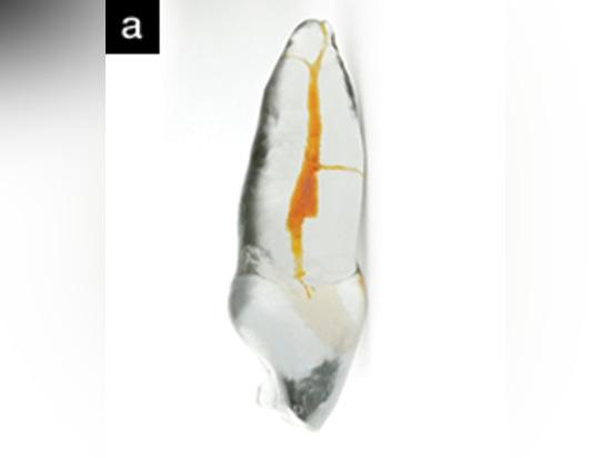 Reproduction procédurale de formation de TrueTooth d'une incisive centrale maxillaire avec un système complexe de canal radiculaire de mb. (Courtoisie des laboratoires dentaires d'éducation.)