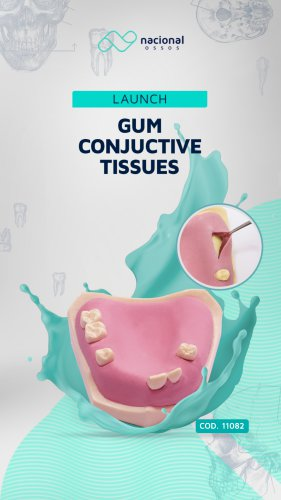 Gum Conjuctive Tissues