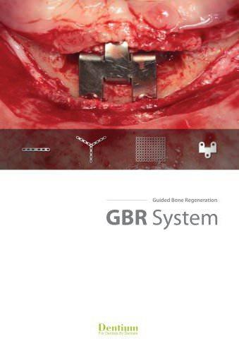 GBR system GSPS-1304